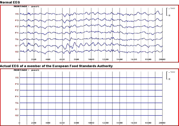 EEG (click to view larger)